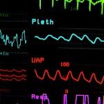 Откриха гените на инфаркта