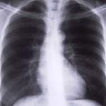 Рак на белия дроб се открива чрез златни наночастици