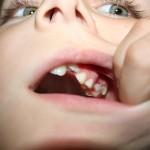 80% от децата в България имат стоматологични проблеми