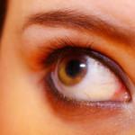 Жълтеникави отлагания над очите предупреждават за инфаркт