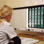 Създават 13 центрове за ранна онкологична диагностика
