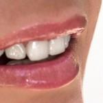 Диабет и кръвно вредят на зъбите