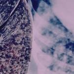 Витамин С лекува туберкулоза