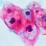 ЧПВ се свързва на рак на гърлото, ануса и устата