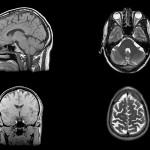 Ваксина удължава живота при рак на мозъка
