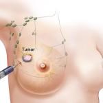 Рак на гърдата заема 25.8% от всички онко заболявания