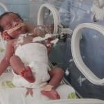Бактерия причинява преждевременно раждане