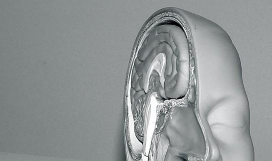 човешки мозък