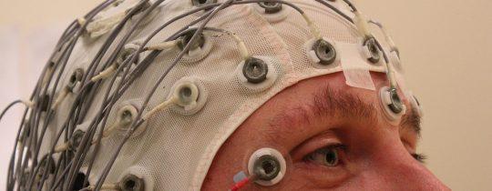 електроенцефалограма