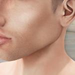 Възрастта на онко заболяванията на уши, нос и гърло в България коварно пада