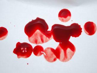 артериална кръв