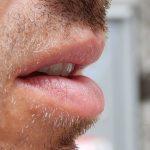 Слюнков тест открива рак на простатата