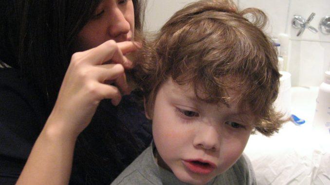 дете с въшки